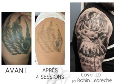 Détatouage au laser fait à la Clinique de Laser Azalea et un tatouage cover up.