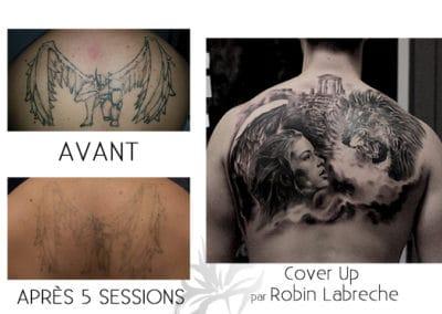 Détatouage au laser fait à la Clinique de Laser Azalea et un tatouage cover up d'un ange et d'un lion fait par Robin Labreche