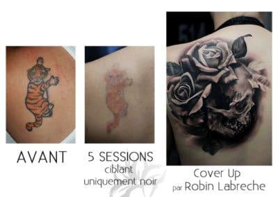 Détatouage au laser fait à la Clinique de Laser Azalea et un tatouage cover up par Robin Labreche