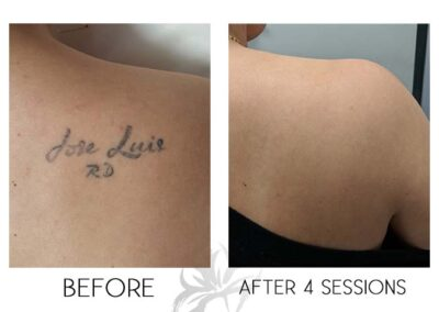 A before and after of laser tattoo removal done by the Quanta Q Plus C at Azalea Laser Clinic.