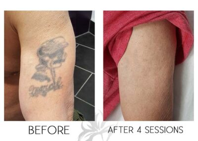 Before and after laser tattoo removal of a sailor done by the Quanta Q Plus C at Azalea Laser Clinic.