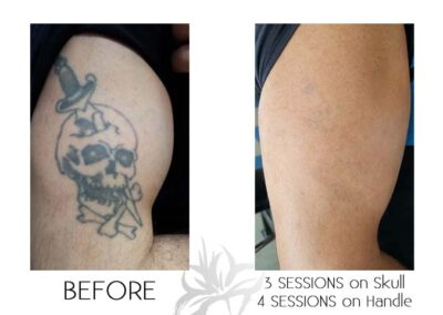 Before and after laser tattoo removal of a skull done by the Quanta Q Plus C at Azalea Laser Clinic.