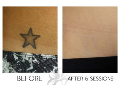 Before and after laser tattoo removal of a star done by the Quanta Q Plus C at Azalea Laser Clinic.