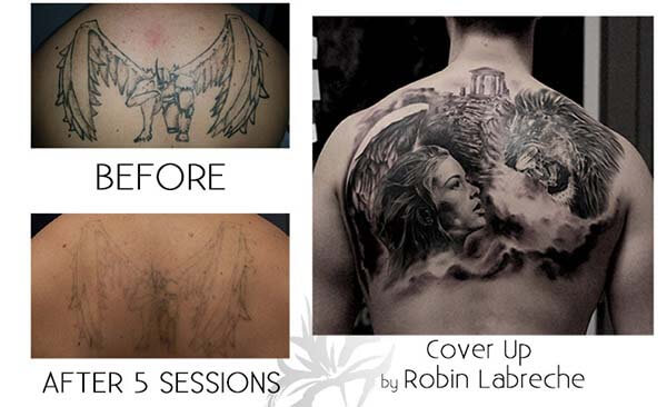 A cover up tattoo of an angel and a lion after undergoing 5 sessions of laser removal.