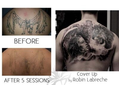 Before and after laser tattoo removal of a soldier done by the Quanta Q Plus C at Azalea Laser Clinic; with a cover up tattoo done by Robin Labreche.