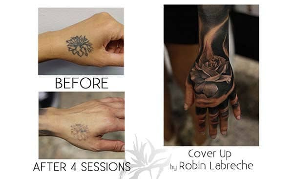 A cover up tattoo of a rose after having 4 sessions of laser tattoo removal.