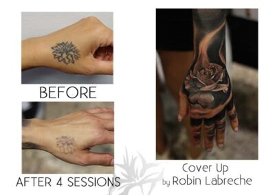 Before and after laser tattoo removal of a flower done by the Quanta Q Plus C at Azalea Laser Clinic; with a cover up tattoo done by Robin Labreche.