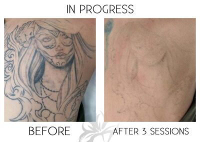 Before and after laser tattoo removal of a face on the shoulder done by the Quanta Q Plus C at Azalea Laser Clinic.
