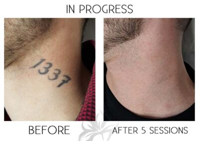 Before and after laser tattoo removal of number on the neck done by the Quanta Q Plus C at Azalea Laser Clinic.