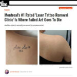Mtl Blog's article on Azalea Laser Clinic.