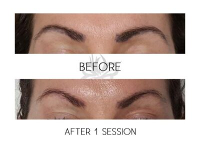 A before and after of permanent makeup removal done by the Quanta Q Plus C at Azalea Laser Clinic.